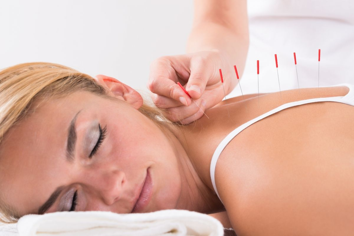 Patient receiving acupuncture treatment for infertility