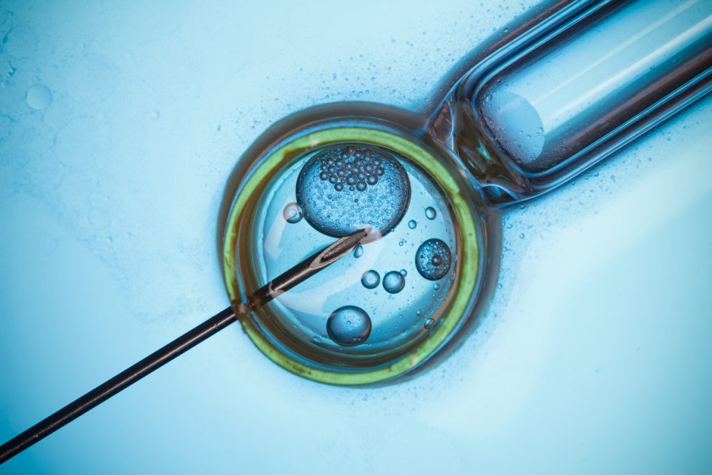 "In vitro, meaning ""in glass"" in Latin, involves fertilization of an egg by sperm in a Petri dish."
