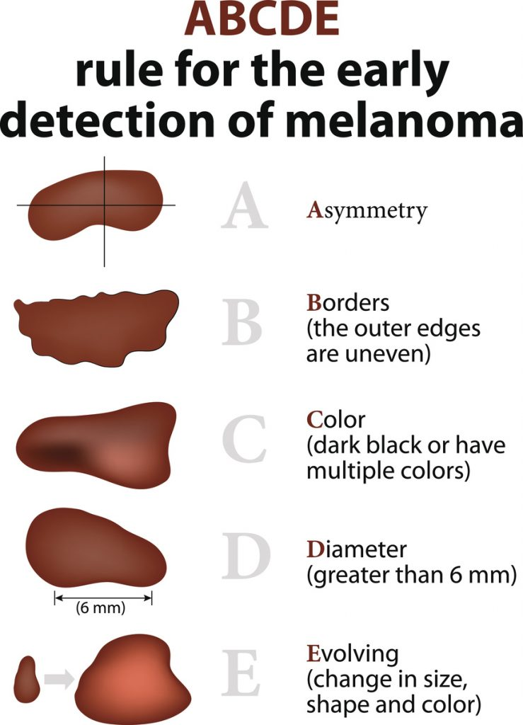 ABCDE Rule for the early detection of Melanoma: asymetry, uneven borders, dark or multiple colors, diameter greater than 6 mm, evolving