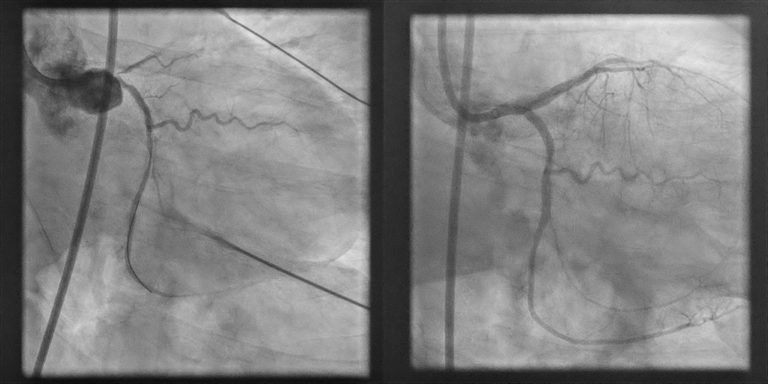 coronary arteries imaging before and after PCI procedure