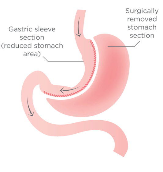 Illustration of gastric sleeve