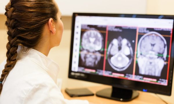 doctor looking at images of brain