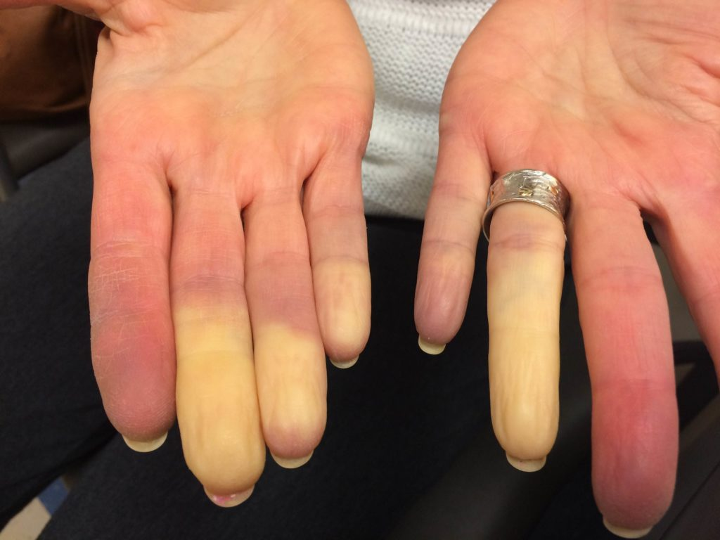 white fingers Raynauld's disease
